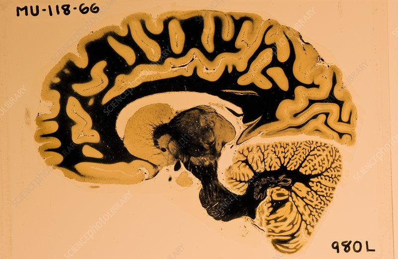 Human brain specimen, USA