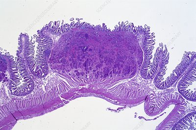 Bowel cancer, light micrograph