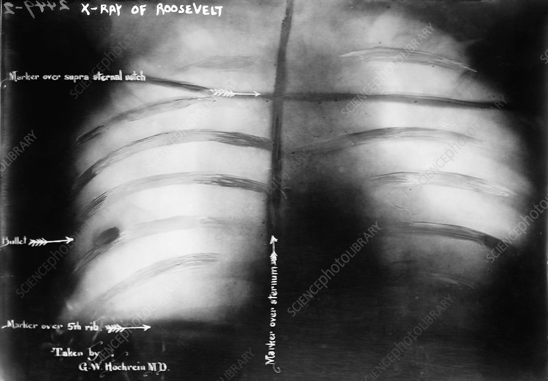 Roosevelt bullet, 1912 chest X-ray