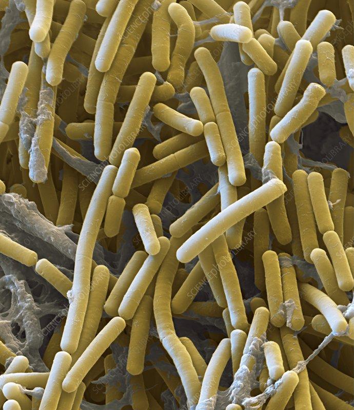 Clostridium botulinum bacteria, SEM