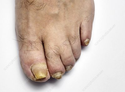 Fungal infection of the toenailsUnhealthy Toenails