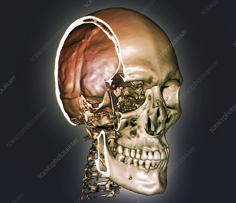 Normal skull, 3D CT scan