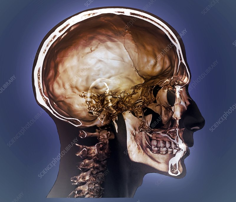 Normal head and neck, 3D CT scan