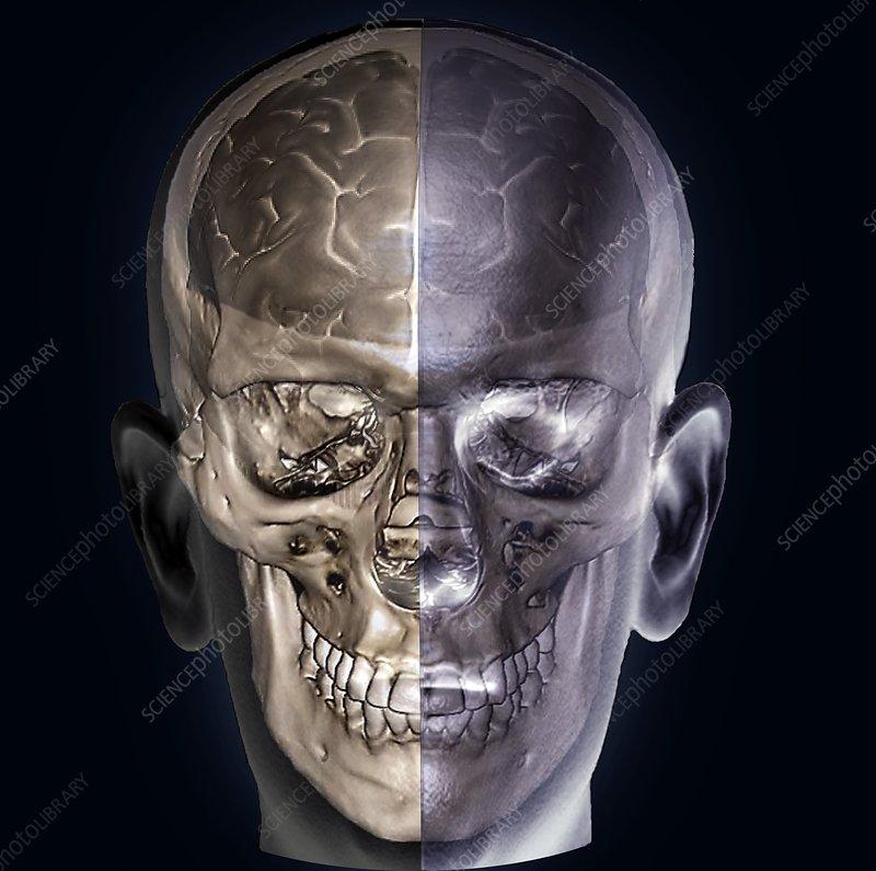 brain mri 3d - photo #37