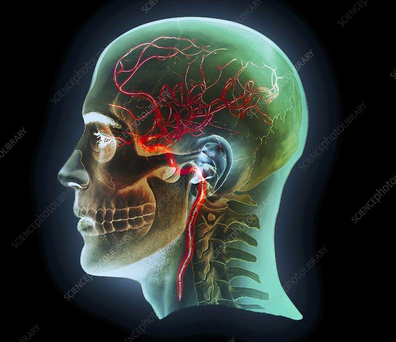 Internal carotid artery, 3D CT scan - Stock Image C016/6400 ...