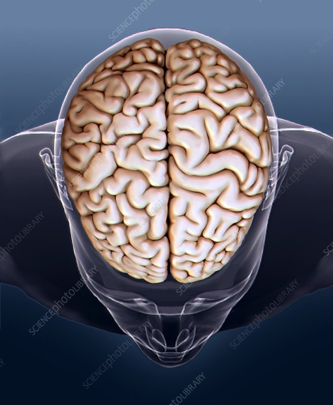Human brain, MRI scan