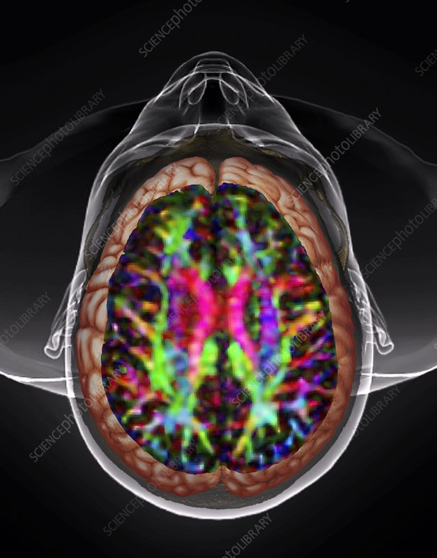 Human head and brain, DTI and 3D CT scans