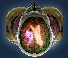 Stroke, MRI and 3D CT scans