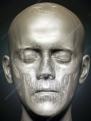 Human head, MRI and 3D CT scans