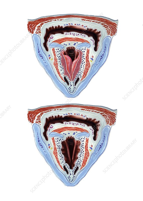 Oedema of larynx, artwork