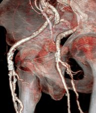 Atherosclerosis, 3D CT scan