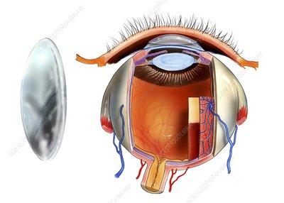 Contact lens and eye anatomy, artwork