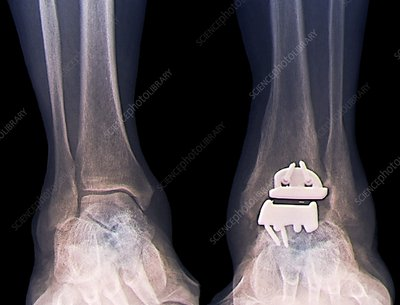 Replacement ankle joint, X-ray