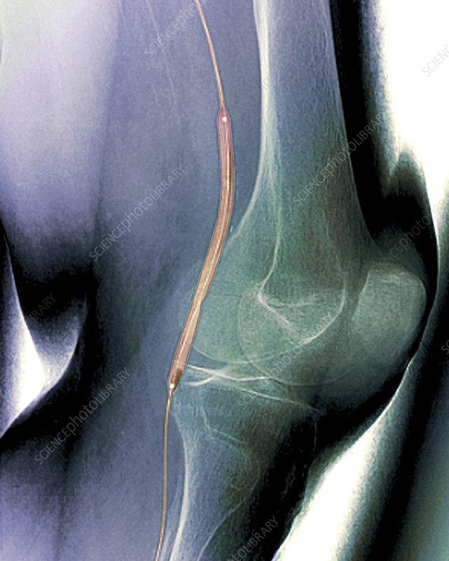 Balloon angioplasty, X-ray