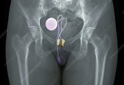 Artificial urinary sphincter, X-ray