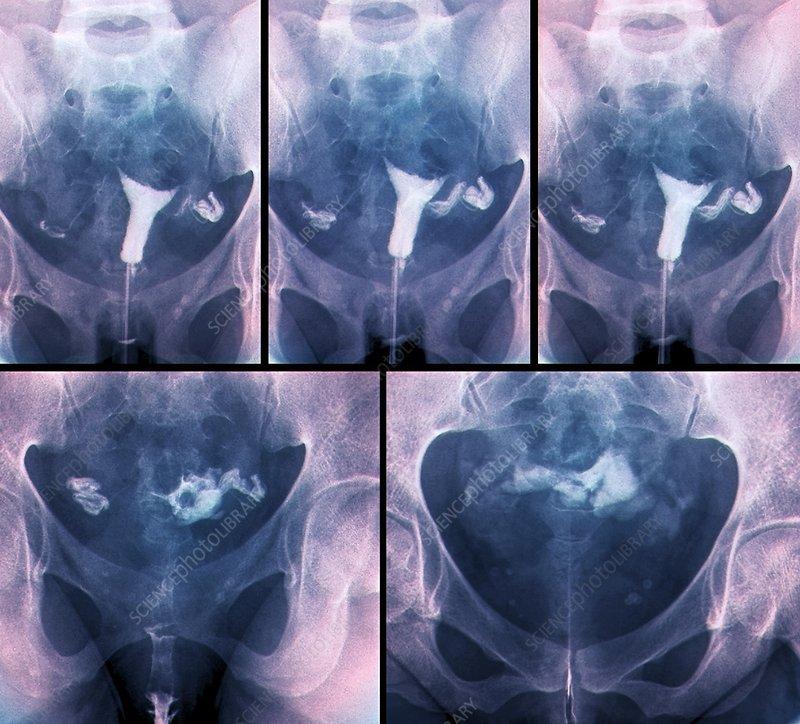 Blocked fallopian tubes, X-rays
