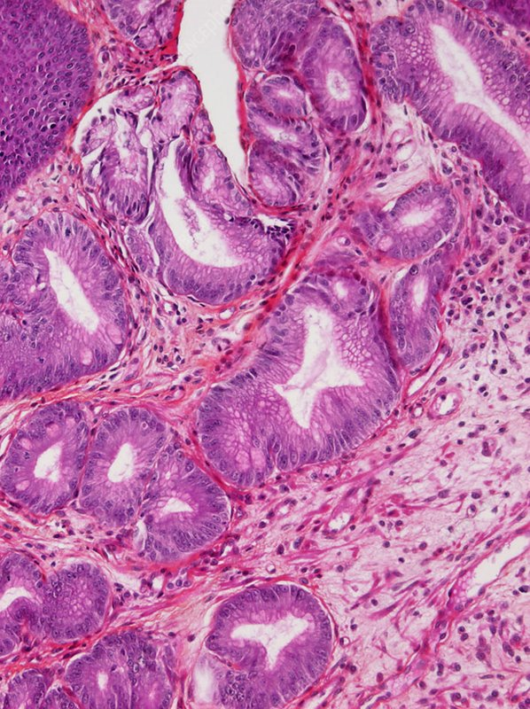 Barrett's oesophagus, light micrograph