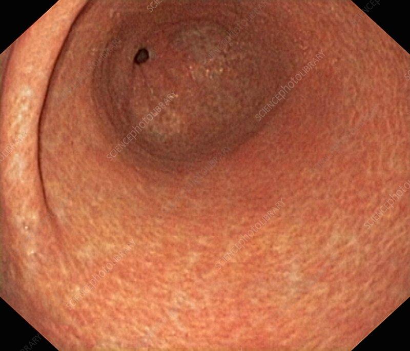 Atrophic gastritis, endoscope view