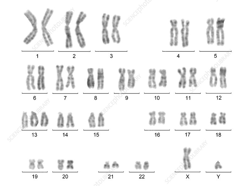 Male karyotype with trisomy 13