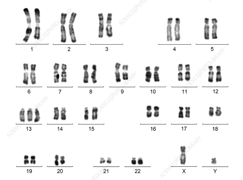 Male karyotype with trisomy 13