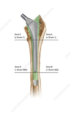 Prosthetic hip joint and Gruen zones
