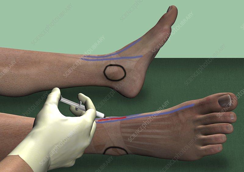 Deep fibular nerve block, artwork - Stock Image C016/6833 ...