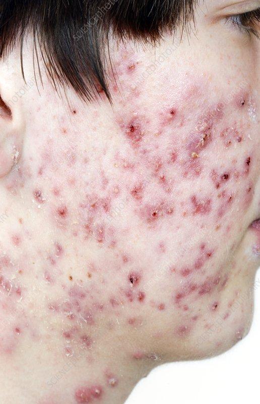 Acne vulgaris on the face