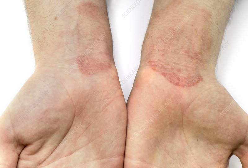 Contact dermatitis on the wrists