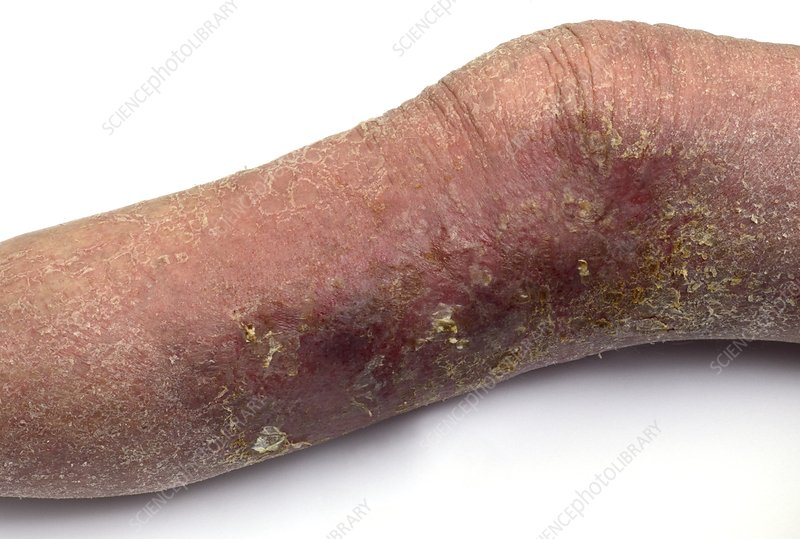 Eczema on the lower leg