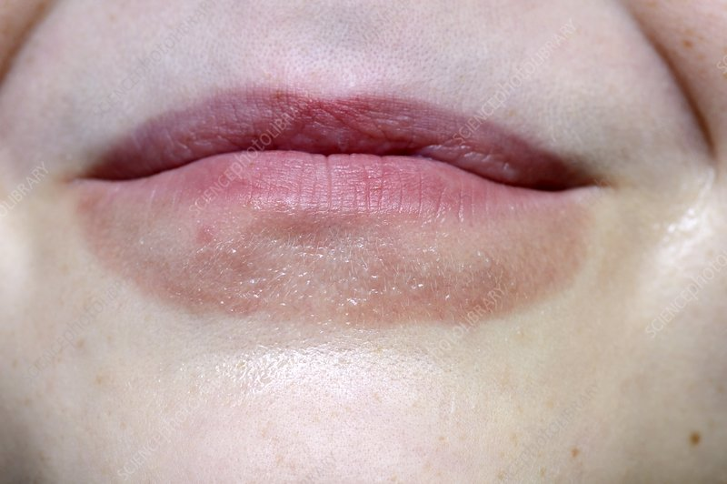 Lip smacking dermatitis