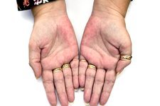 Rash (erythema) on the palms