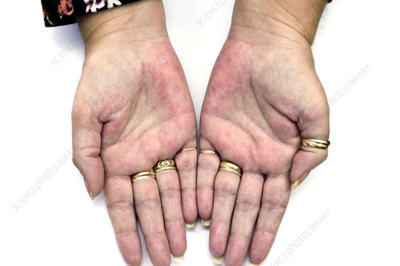 Rash (erythema) on the palms