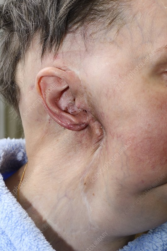 Parotid tumour after removal