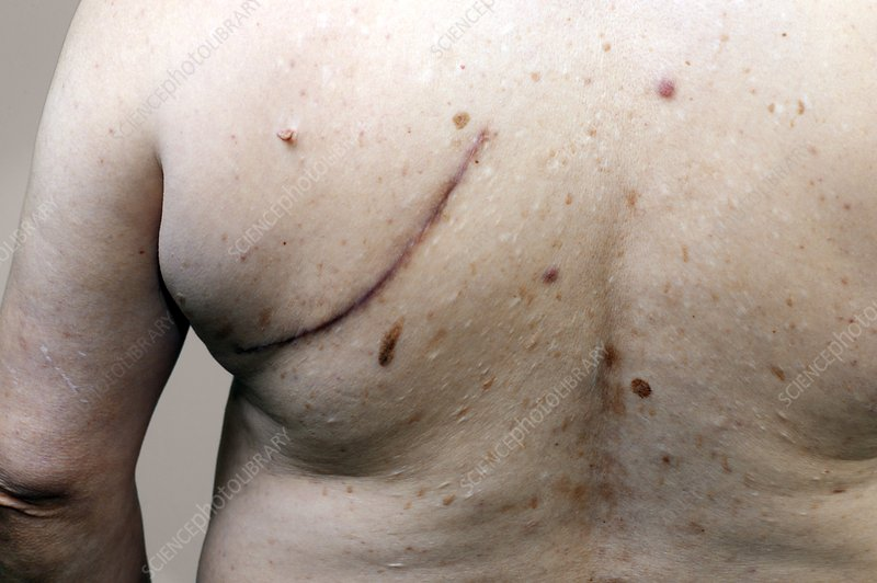 Scar from lung cancer removal