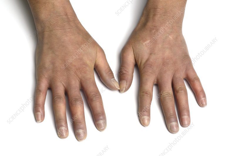 Scleroderma of the fingers