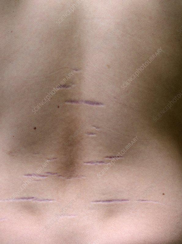 Growth stretch marks