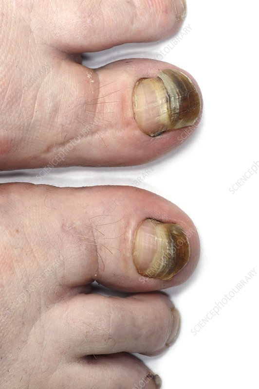 Discoloured toenails from chemotherapy