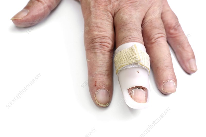 Strapped finger injury