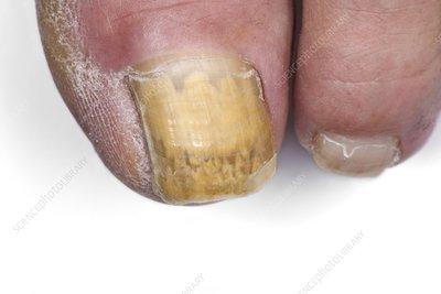 Fungal toenail infectionUnhealthy Toenails