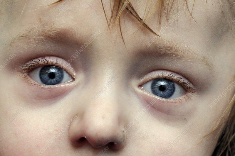 Blue sclera in osteogenesis imperfecta