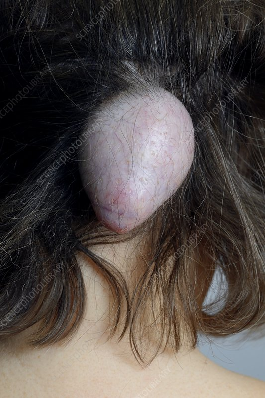 Sebaceous cyst on the scalp