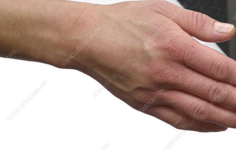 Tenosynovitis of the hand