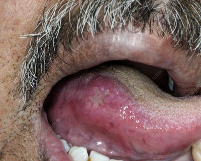 Aphthous ulcer on the tongue