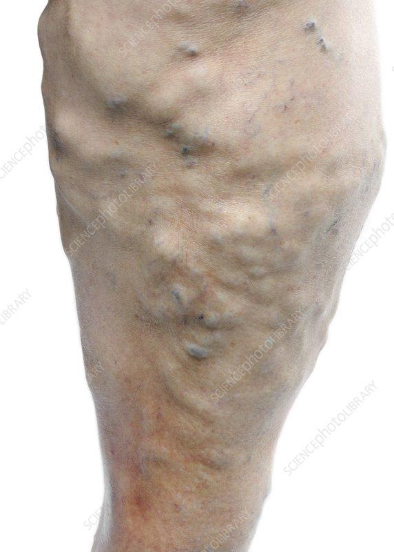 Varicose veins in the leg