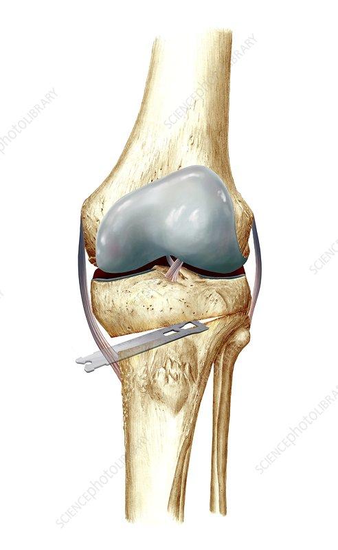 Knee osteotomy, artwork