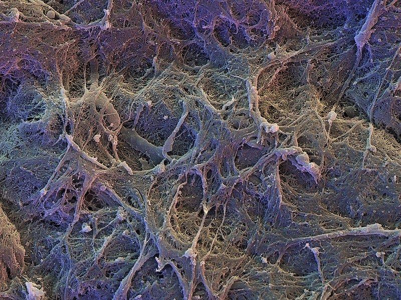 Hyaline cartilage, SEM