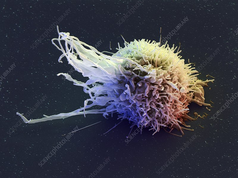 Lymphocyte white blood cell, SEM