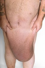 Man with excess skin after weight loss