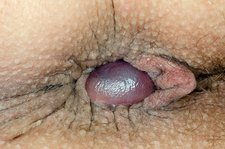 Thrombosed haemorrhoid