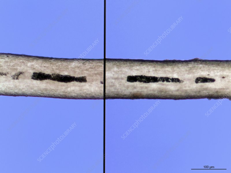 Forensic Analysis Of Human Hair Stock Image C016 7891 Science Photo Library